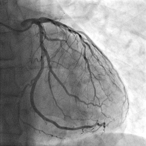 angiogram san angelo tx