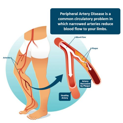 PAD - Peripheral Artery Disease diagnosis and treatment in Tulsa, OK