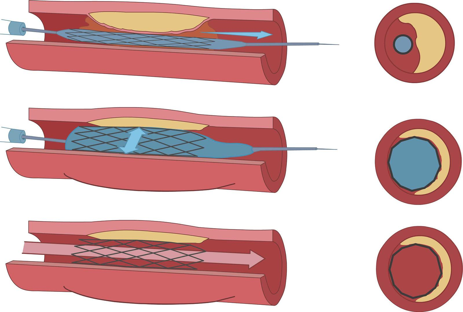 Endovascular Angioplasty and Stent Example Image - San Angelo Cardiovascular